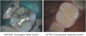 cosmetic dentistry 1 300x126 - Fillers & Botox Exmouth